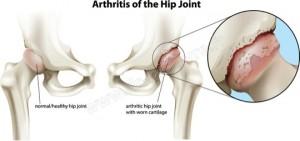 arthrose hanche schema