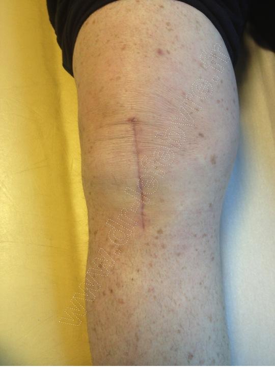 cicatrice PTG
