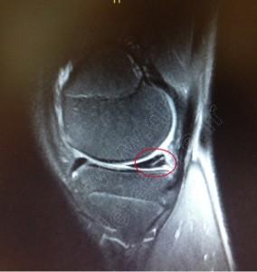 irm menisque lesion horizontale