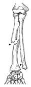 fracture du radius avec luxation radio-ulnaire discale (fracture de Galeazzi)