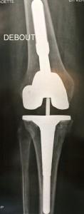 reprise de prothèse totale de genou avec quilles d'extension