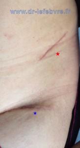 Photographie des cicatrices post-opératoires de la prise de greffe iliaque (rouge) et de la voie d'abord pour la mise en place de la butée osseuse (bleu).