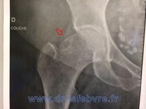 Radiographie de hanche montrant l'effet came osseux responsable du conflit par excroissance du col fémoral