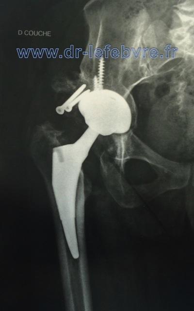 douleurs usure de la hanche
