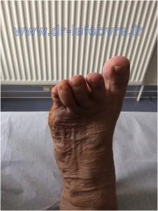 Photographie du pied après correction percutanée du quintus varus.