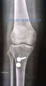 Radiographie de face du genou montrant la médialisation de la tubérosité tibiale antérieure.